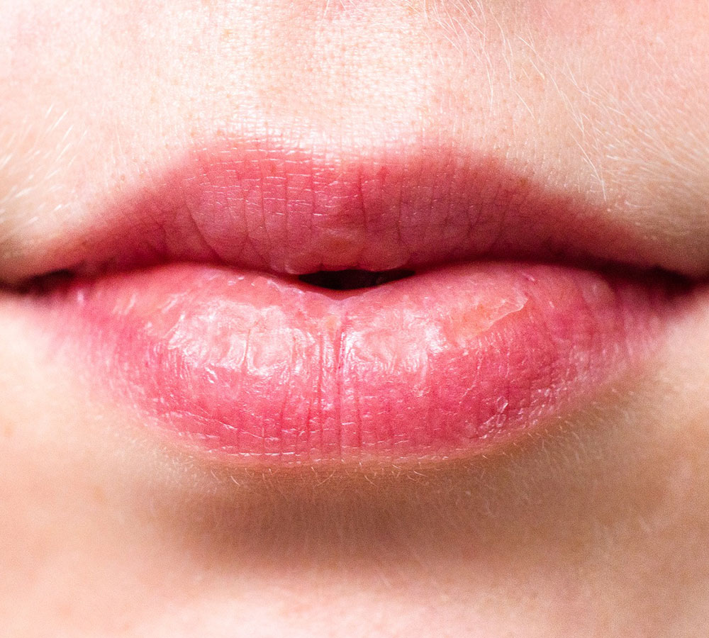 dry-mouth-and-its-effects-on-the-oral-health